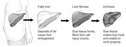What Is Alcohol Liver Disease How Is It Treated?