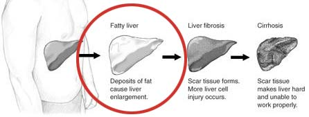 Fatty Liver Diet - The Basics